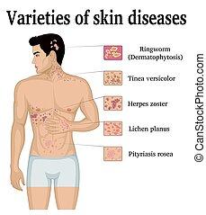 peau, variétés, maladies