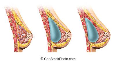 pecho, section., implante, cruz, mujer