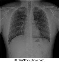 pechos, macho, radiografías
