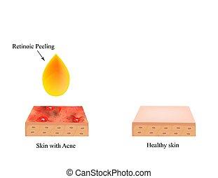 peler, peau, purulent., anatomique, acne., vecteur,...
