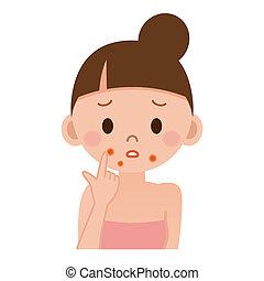 pelle, soffrire, irritazione
