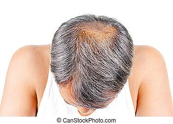 perda cabelo, macho, grisalhos