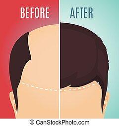 perda cabelo, men-before, conceito, após