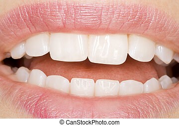 perfect oral hygiene and white teeth