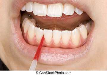 perfect oral hygiene with interdental brushes