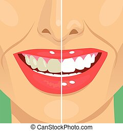 Perfect smile before and after bleaching. Dental care and...