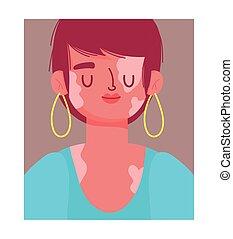 perfectly imperfect, cartoon woman portrait with vitiligo vector illustration