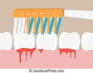 Toothbrush cleans teeth. periodontal disease, bleeding gums. Brushing teeth. Dental equipment. Hygiene and oralcare. Vector illustration in flat style