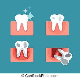 periodontal disease, phasen, foranstaltninger, illustration