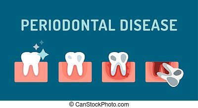Periodontal disease stage steps illustration. Dental tooth problems vector concept. Toothache, tooth dead, bad tooth care. Doctors dentists professional illustration. Medical dental tooth disease, oral problems
