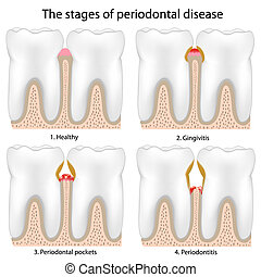 Periodontal Disease - Stages of Periodontal Disease , eps8
