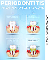 Periodontitis, inflammation of the gums stages, detailed illustration. Healthy tooth, Gingivitis and at the end advanced Periodontitis