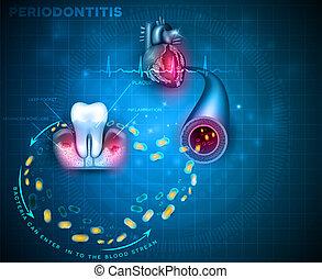 Periodontitis gum disease cause heart problems - ...