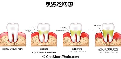 Periodontitis, inflammation of the gums, detailed illustration