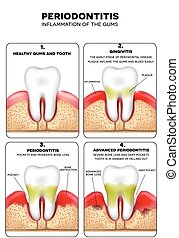 Periodontitis, inflammation of the gums, detailed ...
