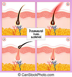 Permanent hair removal - illustration of permanent hair...