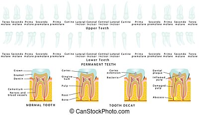 Permanent Teeth. Upper Teeth. Lower Teeth. Tooth decay. Set...