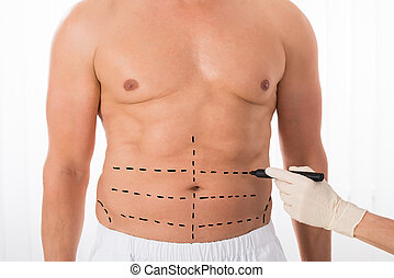 Person Hands Drawing Perforation Lines On Stomach