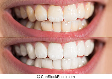 Person Teeth Before And After Whitening - Close-up Detail Of...