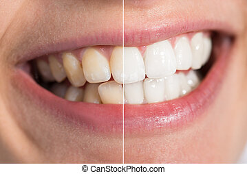 Person Teeth Before And After Whitening - Teeth Whitening...