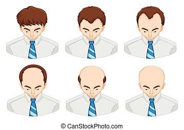 perte cheveux, étapes, homme