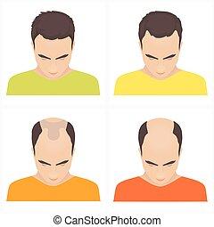 perte cheveux, étapes, hommes