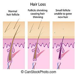 perte cheveux, eps8, processus