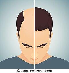 perte cheveux, men-before, concept, après