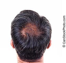 perte, tête, gris, dos, cheveux, cheveux, symptômes, mâle,...