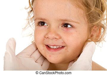 petit, petite fille, varicelle, médecins