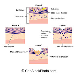 Drawing to show phases of tissue repair, specifically oral mucosal tissue