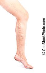 Phlebeurysm disease on legs on white background. Varicose veins