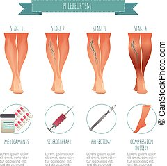 Phlebology infographic, treating varicose veins. Vector illustration of stage of vein diseases. Medical compression hosiery