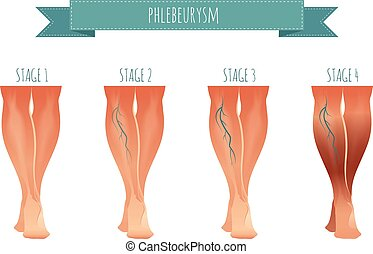 Phlebology infographic, treating varicose veins. Vector illustration of stage of vein diseases