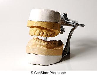 Dental Mold - Photo of a Dental Mold