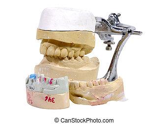 Dental Mold - Photo of Plaster Dental Mold / Impression - ...