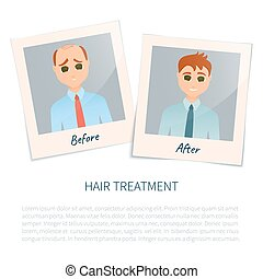 Photographs of a man before and after hair treatment