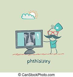 phthisiatry, mellkas-röntgen, látszik