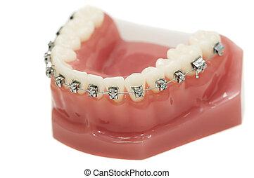 più basso, mascella, dentale, isolato, parentesi, modello, ...