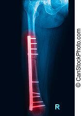 piastra, raggi X, vite, fissazione, immagine, femore, femore, frattura, esposizione