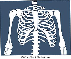 picture., bröstkorg, röntga