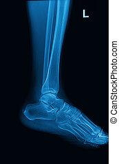 pie, tobillo, imagen, radiografías, lateral