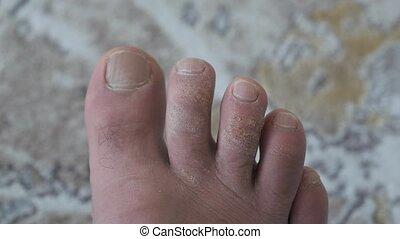 pied, calluses, humain, formé, orteils, négligé, moisissure