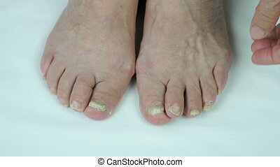 pied, clous, fungal, infection
