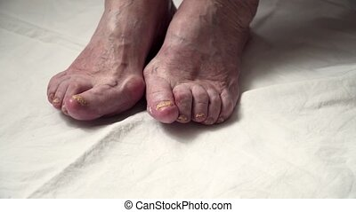pied, legs., diabetis, clous, femme, endommagé, fungus., ...
