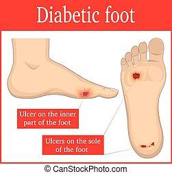 piede, diabetico