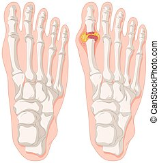 piedi, gout, punta umana