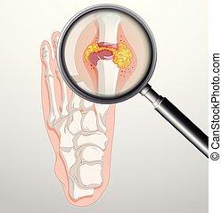 piedi, gout, umano