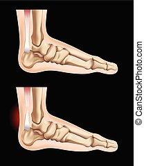 piedi, tendine, lesione, umano