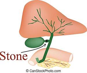 piedra, bilis, duct., vesícula biliar, duodeno, páncreas, bilis, ducts., vector, ilustración, en, aislado, plano de fondo
